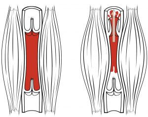 Muscles restrict blood flow - doctor sarno back pain relief with joe polish