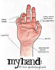 tendinitis in hand - photo - Inflammation and Pain In Chronic Tendonitis